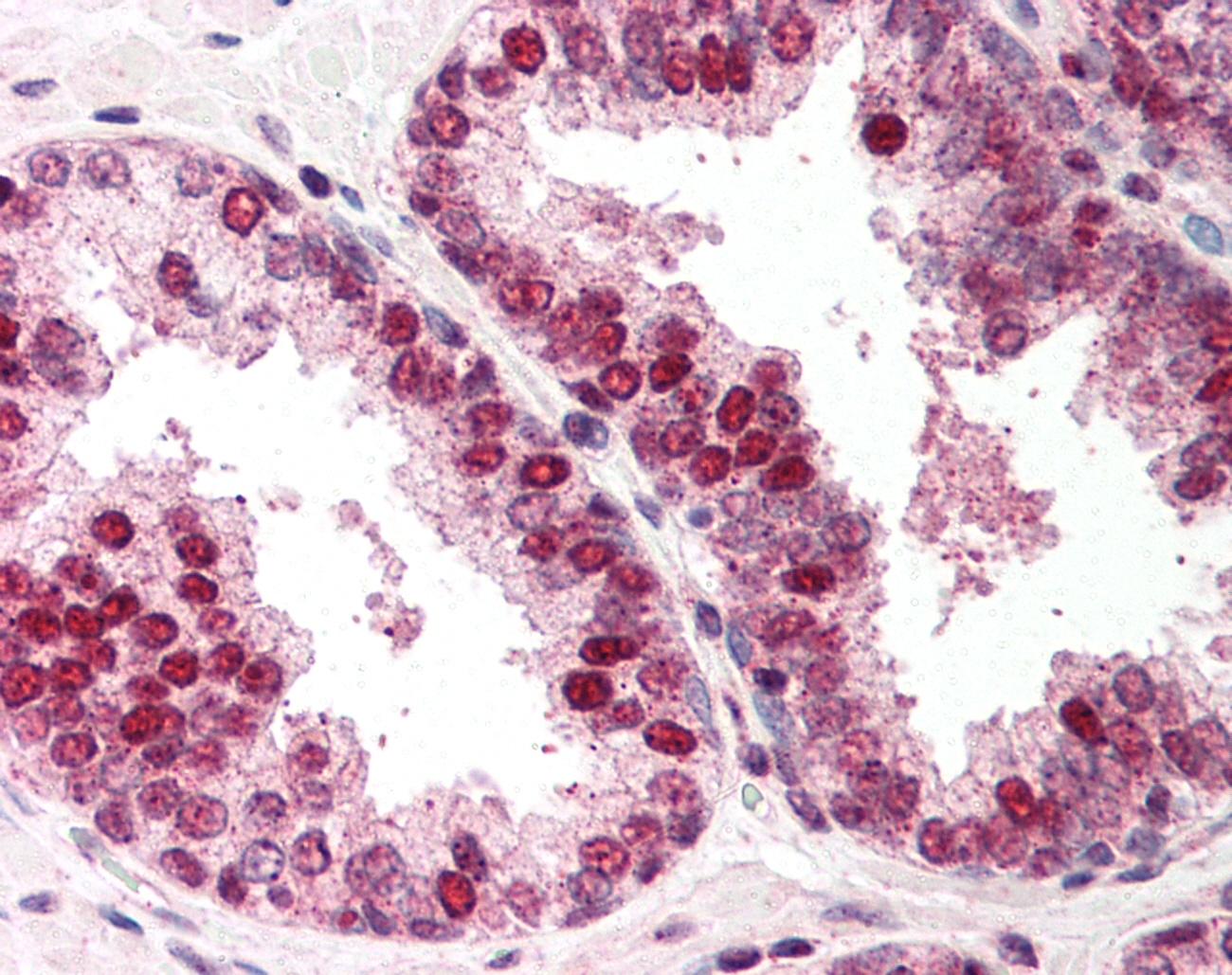 Anti Human RAD52 Antibody gallery image 1