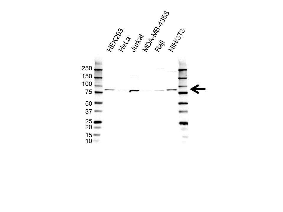 Anti RAD54L Antibody (PrecisionAb Polyclonal Antibody) gallery image 1