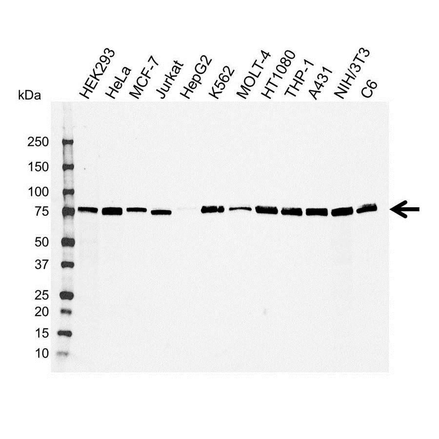 Anti Radixin Antibody (PrecisionAb™ Polyclonal Antibody) gallery image 1