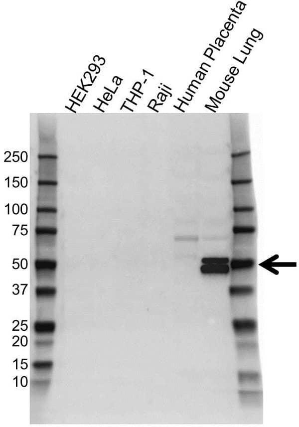 Anti RAGE Antibody (PrecisionAb Polyclonal Antibody) gallery image 1