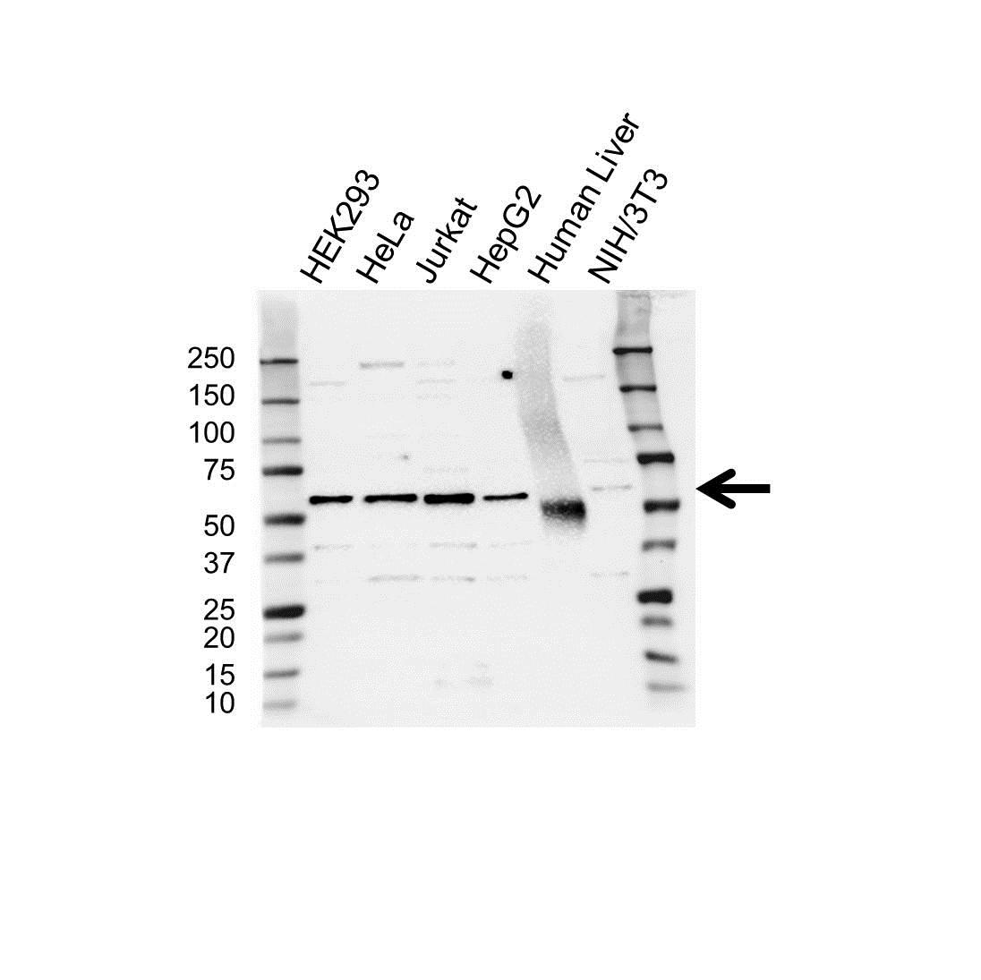 Anti RAP1GDS1 Antibody (PrecisionAb Polyclonal Antibody) gallery image 1