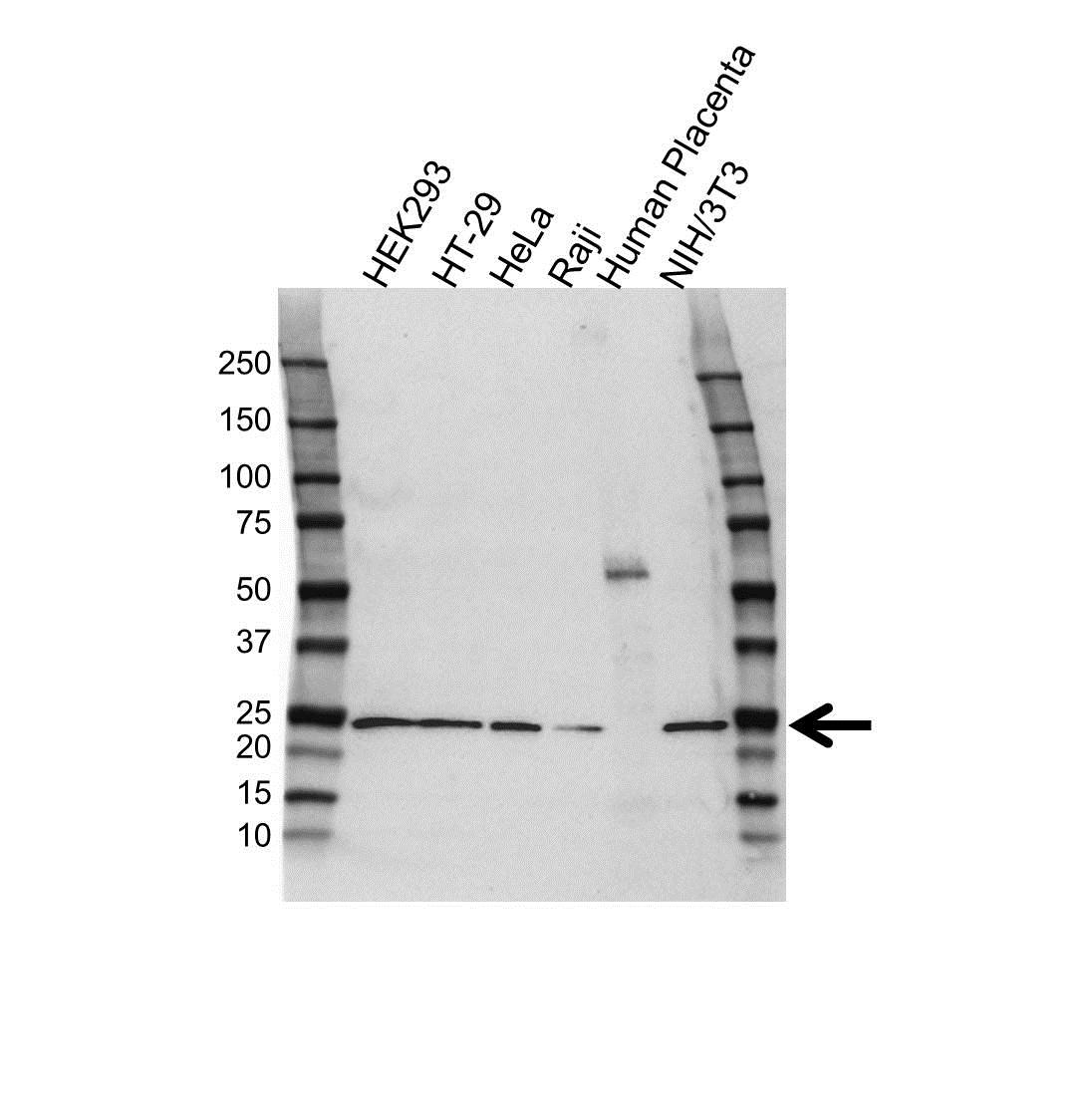 Anti RCAN1 Antibody (PrecisionAb™ Polyclonal Antibody) gallery image 1