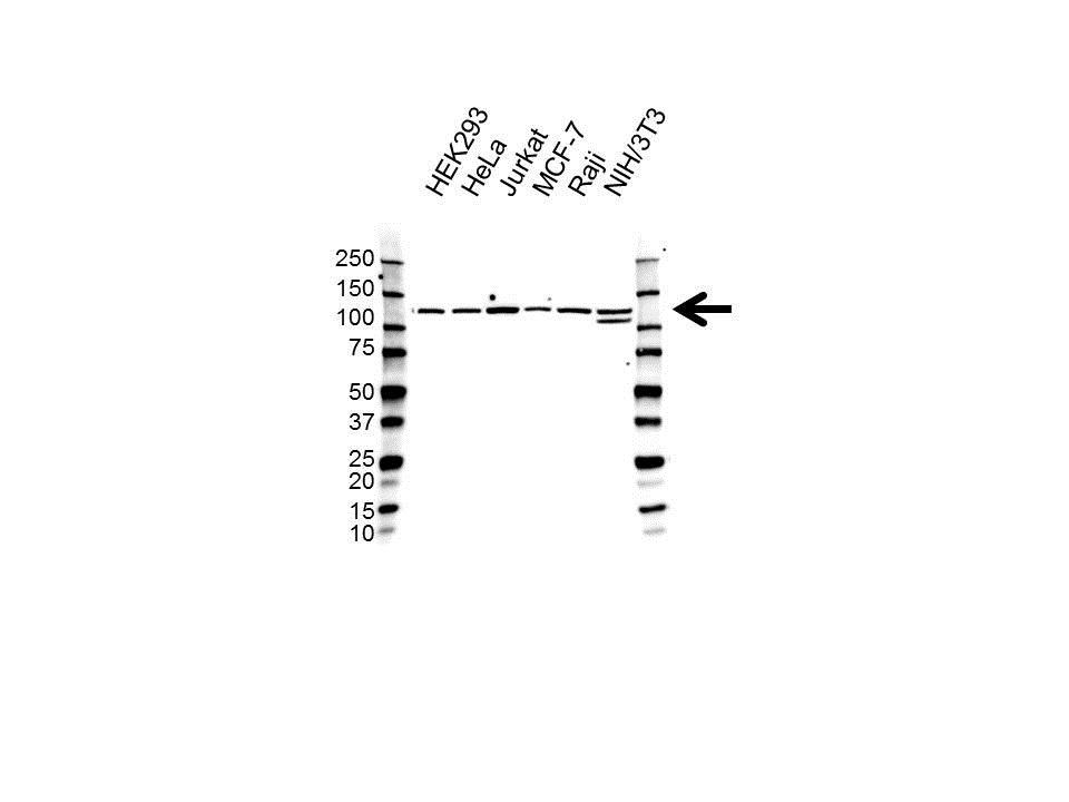Anti RE1-SILENCING Transcription Factor Antibody (PrecisionAb™ Polyclonal Antibody) gallery image 1