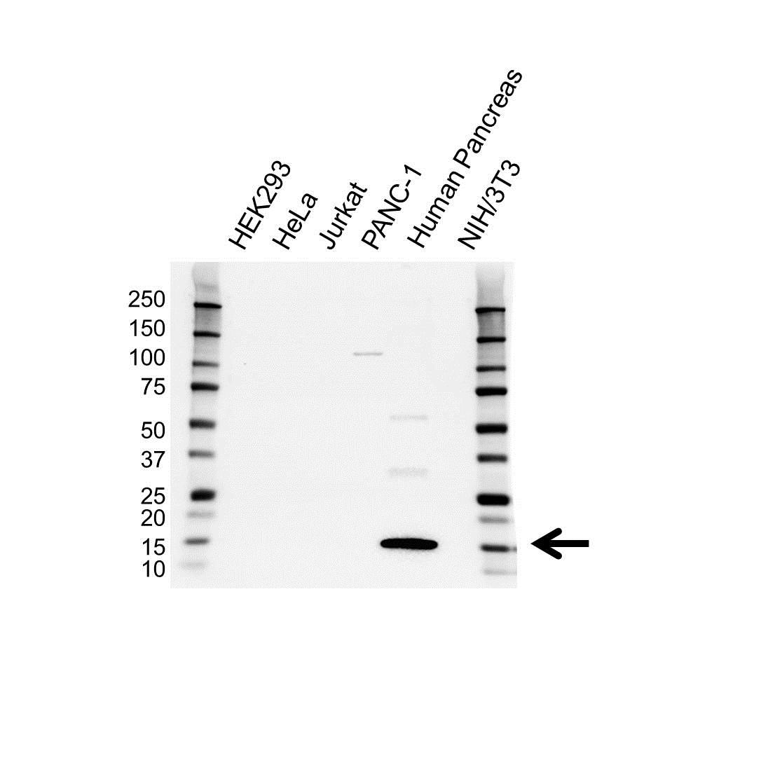 Anti REG1A Antibody (PrecisionAb Polyclonal Antibody) gallery image 1
