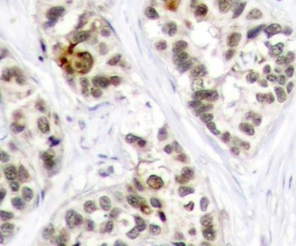 Anti RelB (pSer573) Antibody thumbnail image 2