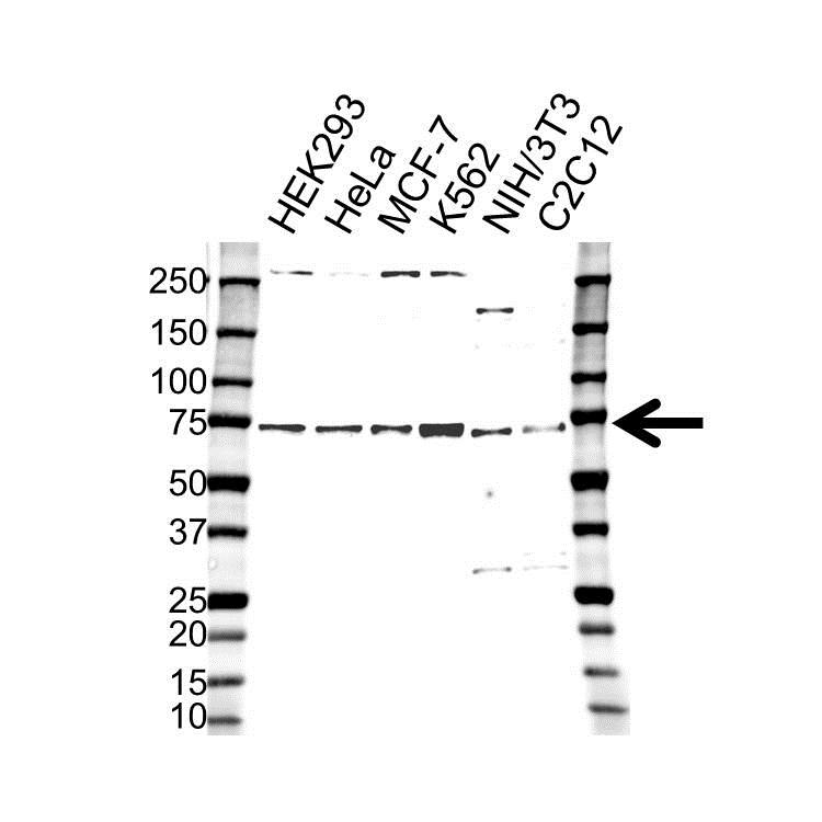 Anti Retinoblastoma-Binding Protein 5 Antibody (PrecisionAb Polyclonal Antibody) gallery image 1