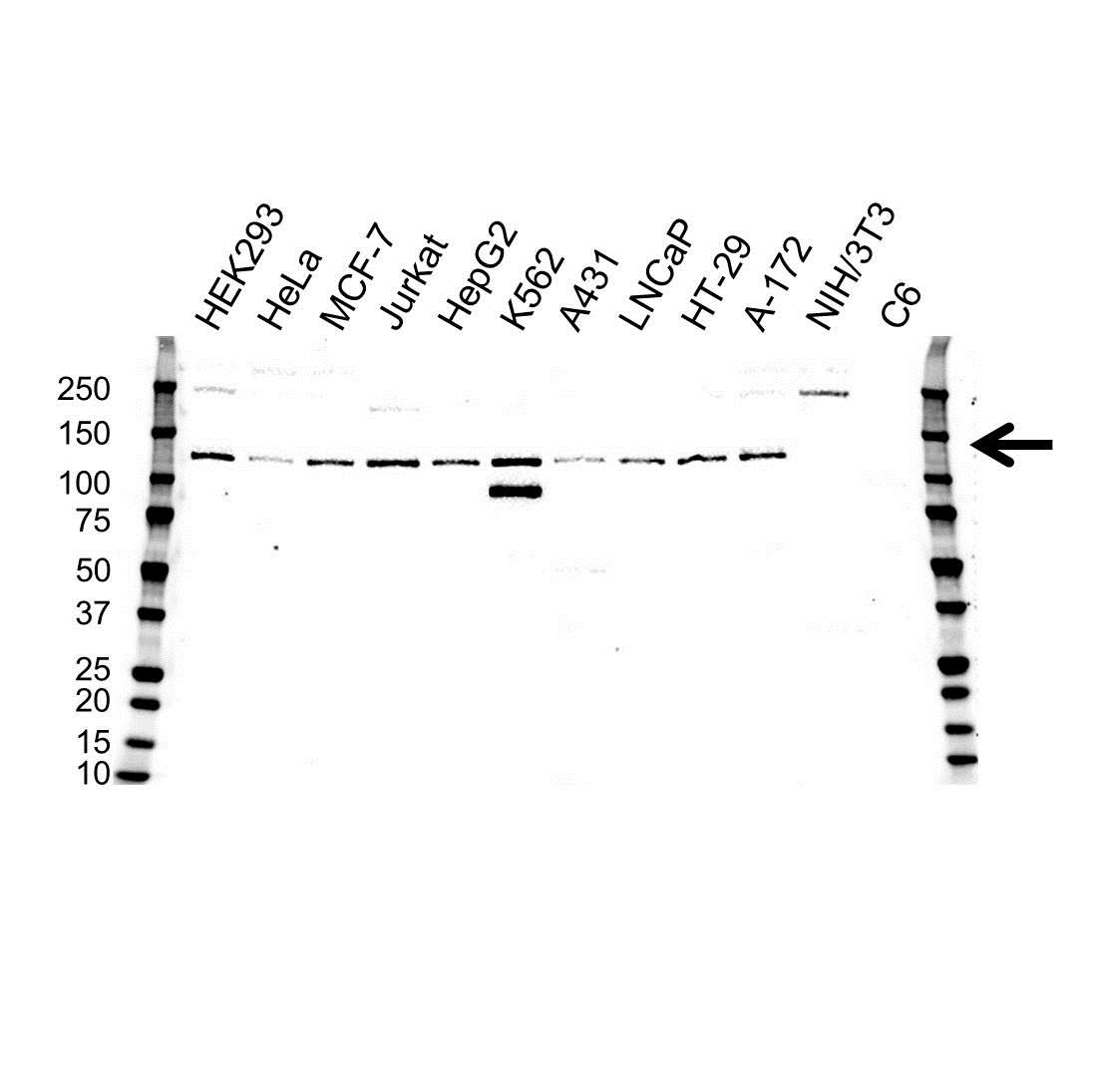 Anti RETINOBLASTOMA-LIKE Protein 2 Antibody (PrecisionAb™ Polyclonal Antibody) gallery image 1