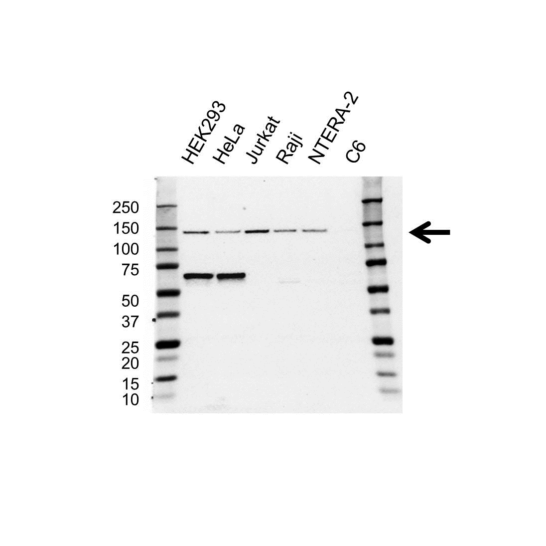 Anti RFX1 Antibody (PrecisionAb™ Polyclonal Antibody) gallery image 1