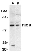 Anti RIP2 (N-Terminal) Antibody thumbnail image 1