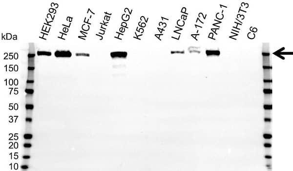 Anti ROBO1 Antibody (PrecisionAb Polyclonal Antibody) gallery image 1