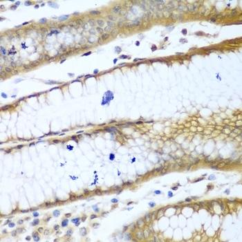 Anti ROCK1 Antibody thumbnail image 3