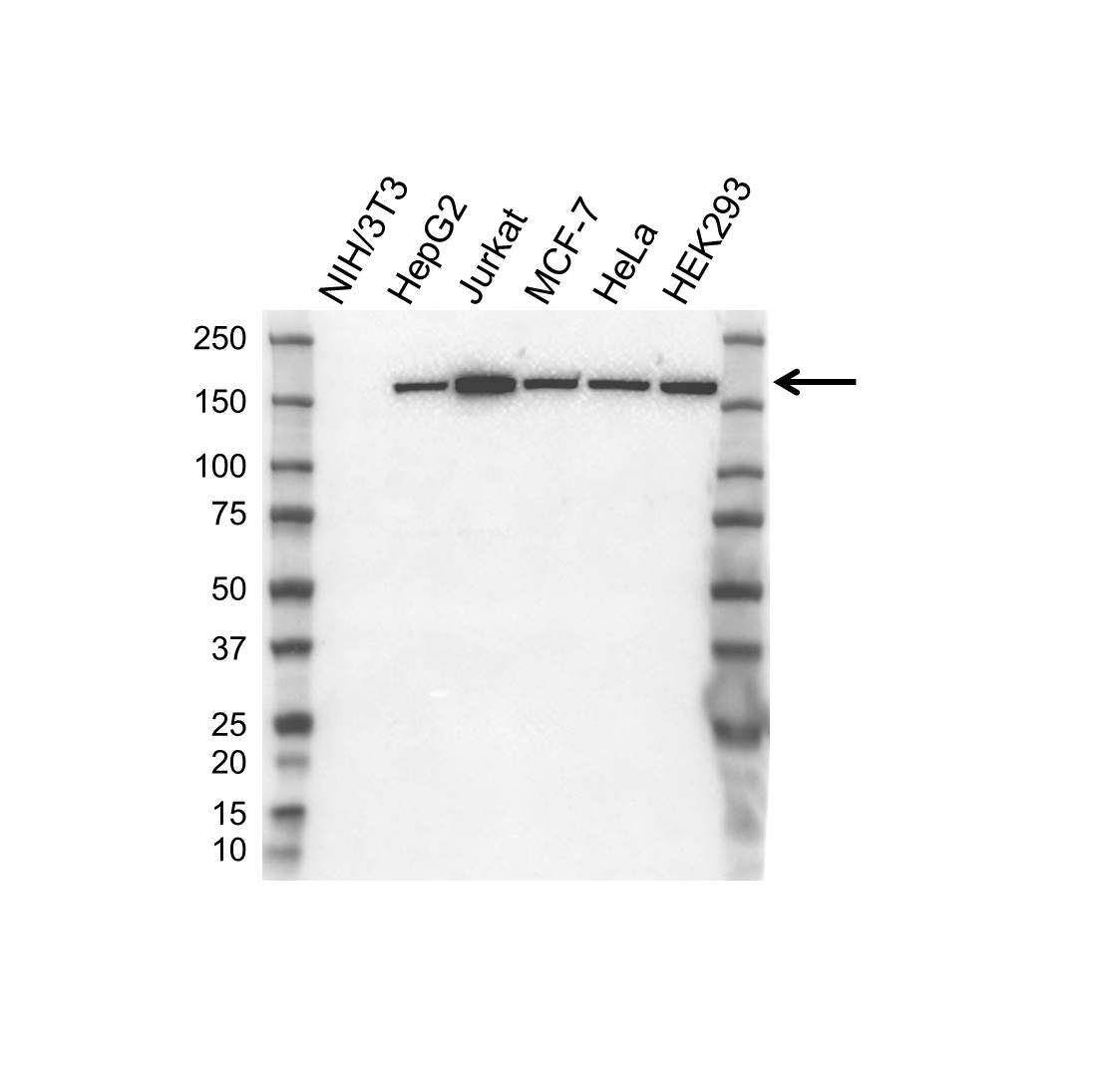 Anti ROCK1 Antibody (PrecisionAb Polyclonal Antibody) thumbnail image 1