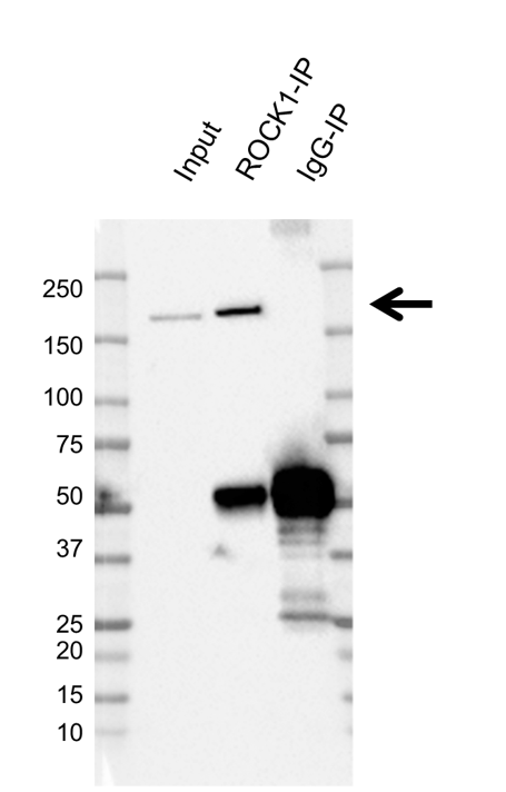 Anti ROCK1 Antibody (PrecisionAb Polyclonal Antibody) thumbnail image 2