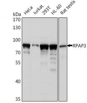 Anti RPAP3 Antibody gallery image 1