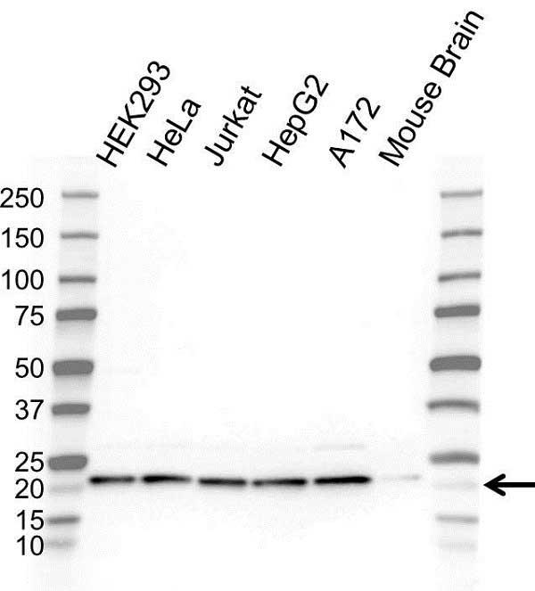 Anti RPL11 Antibody (PrecisionAb Polyclonal Antibody) gallery image 1