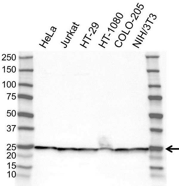 Anti RPL18 Antibody (PrecisionAb Polyclonal Antibody) gallery image 1