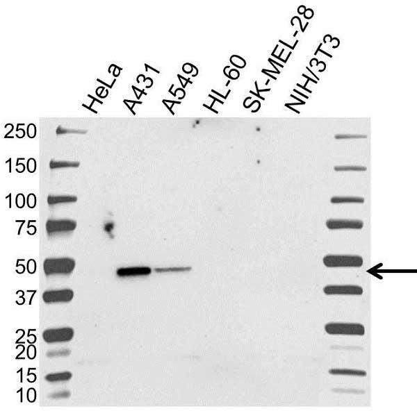 Anti RPL3 Antibody (PrecisionAb Polyclonal Antibody) gallery image 1