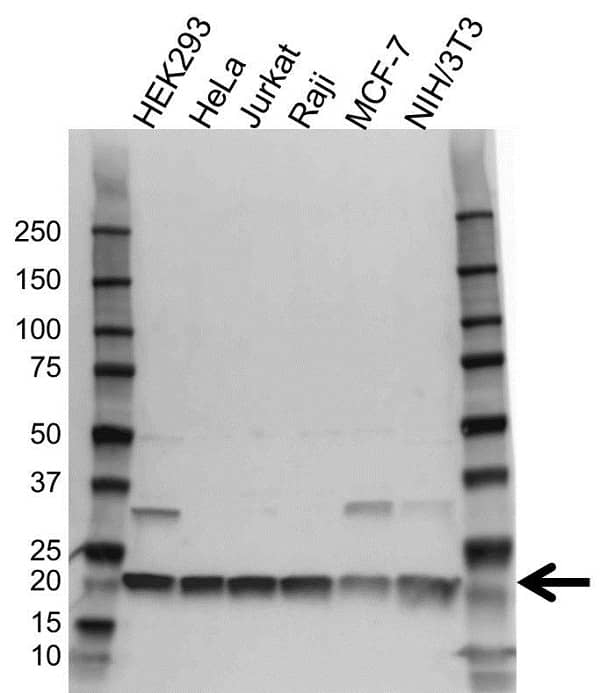 Anti RPS11 Antibody (PrecisionAb Polyclonal Antibody) gallery image 1