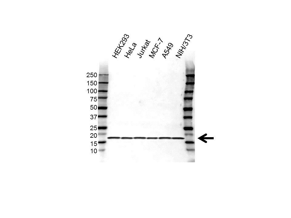 Anti RPS16 Antibody (PrecisionAb Polyclonal Antibody) gallery image 1