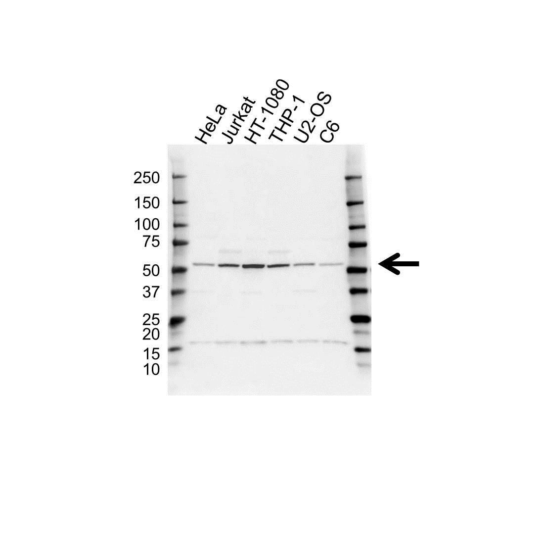Anti RUVBL1 Antibody (PrecisionAb Polyclonal Antibody) gallery image 1