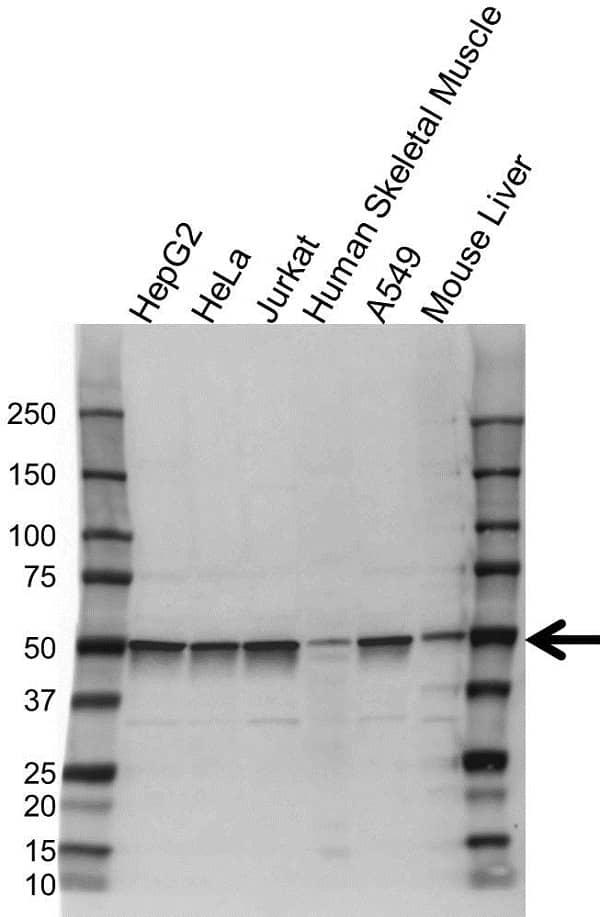 Anti S6 Antibody (PrecisionAb Polyclonal Antibody) gallery image 1