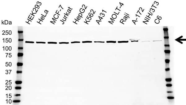Anti SART3 Antibody (PrecisionAb Polyclonal Antibody) gallery image 1