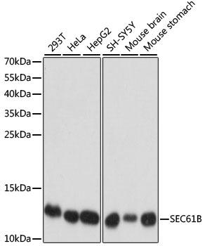 Anti SEC61B Antibody gallery image 1
