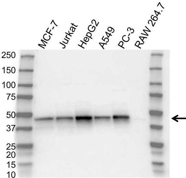 Anti Sharpin Antibody (PrecisionAb Polyclonal Antibody) gallery image 1