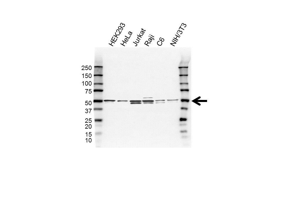 Anti Skar Antibody (PrecisionAb™ Polyclonal Antibody) gallery image 1