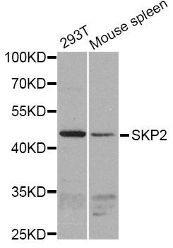 Anti SKP2 Antibody gallery image 1
