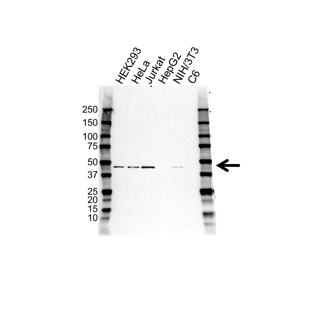 Anti SLC39A6 Antibody (PrecisionAb™ Polyclonal Antibody) gallery image 1
