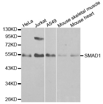 Anti SMAD1 Antibody thumbnail image 1