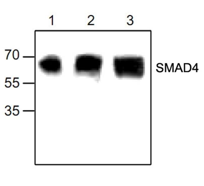 Anti SMAD4 Antibody  gallery image 1