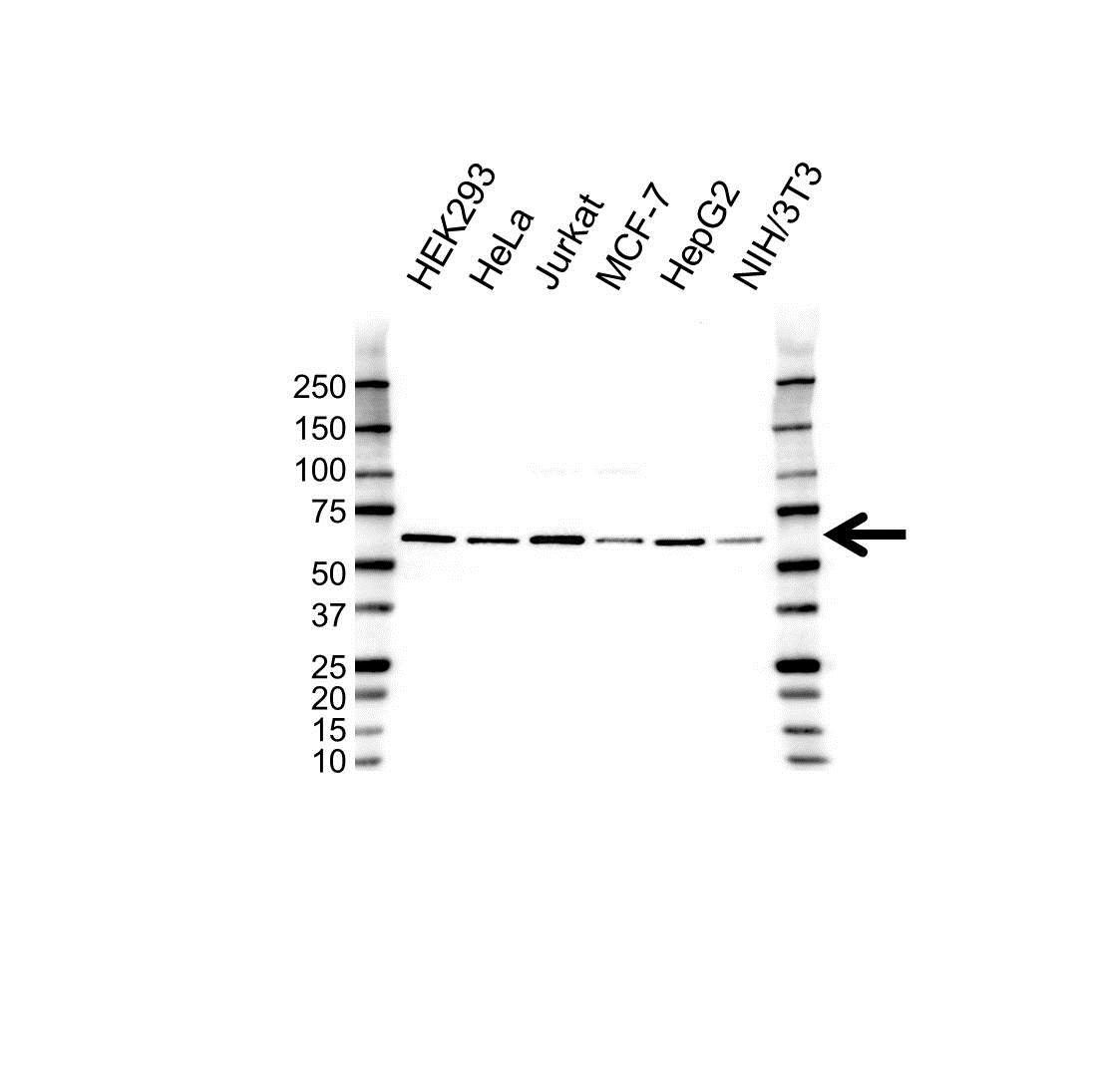 Anti SMAD6 Antibody (PrecisionAb Polyclonal Antibody) gallery image 1