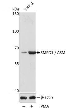Anti SMPD1 Antibody thumbnail image 1