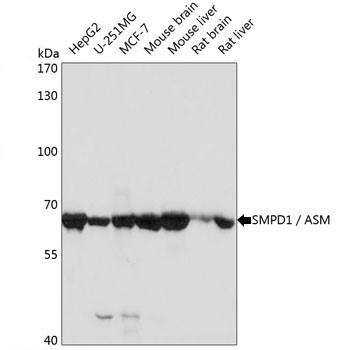 Anti SMPD1 Antibody thumbnail image 2