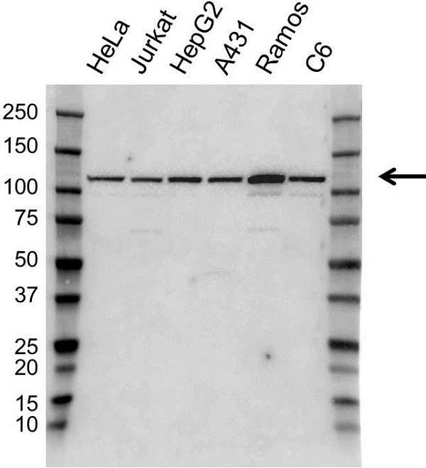 Anti SND1 Antibody (PrecisionAb Polyclonal Antibody) gallery image 1