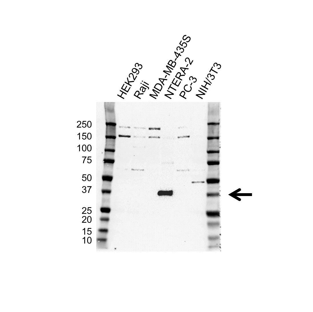 Anti SOX2 Antibody (PrecisionAb Polyclonal Antibody) gallery image 1