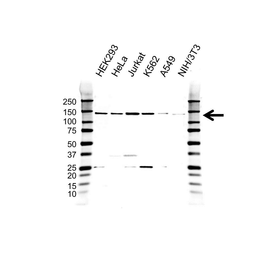 Anti Splicing Factor 3B Subunit 2 Antibody (PrecisionAb™ Polyclonal Antibody) gallery image 1