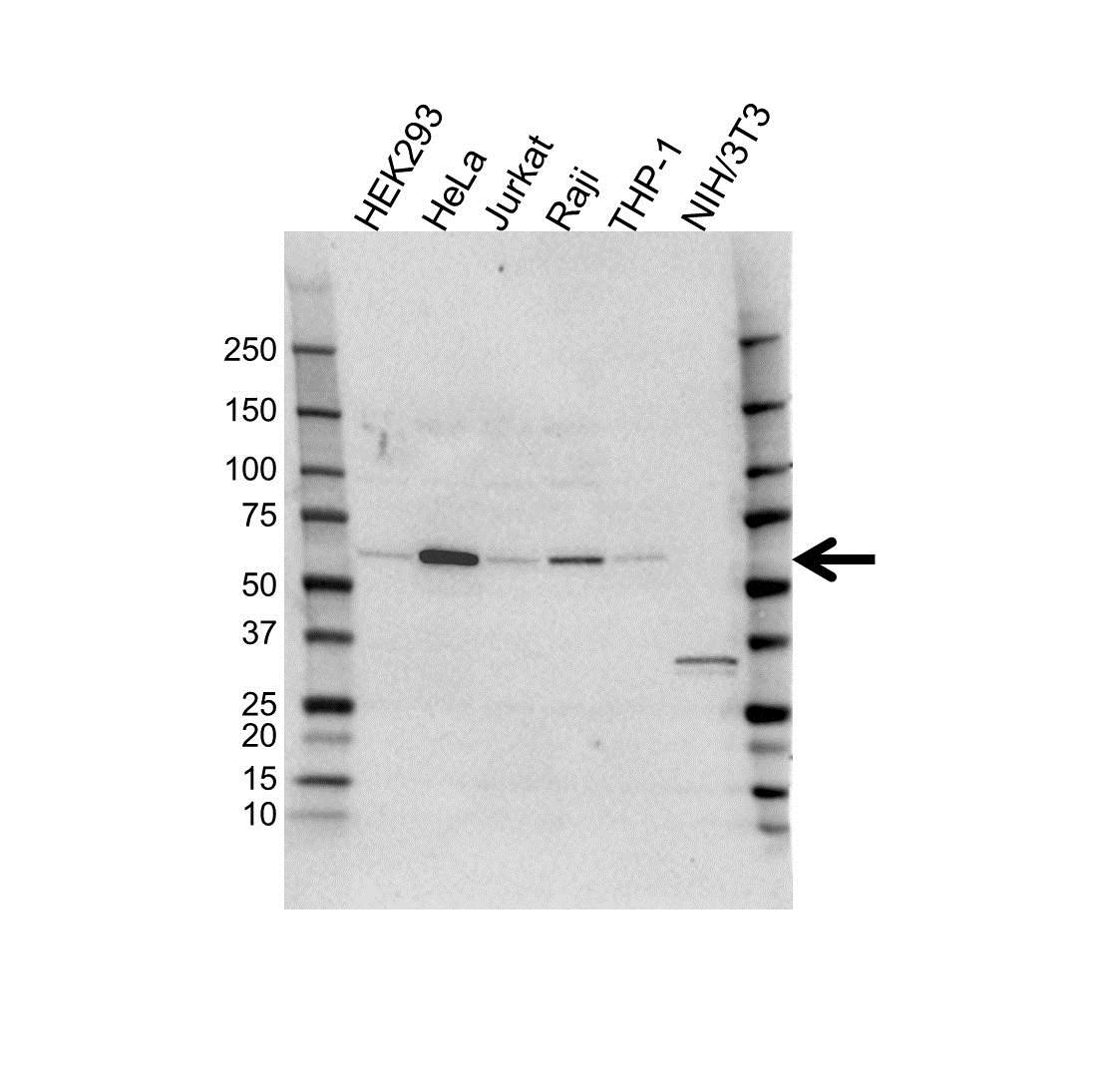Anti SQSTM1 Antibody (PrecisionAb™ Polyclonal Antibody) gallery image 1