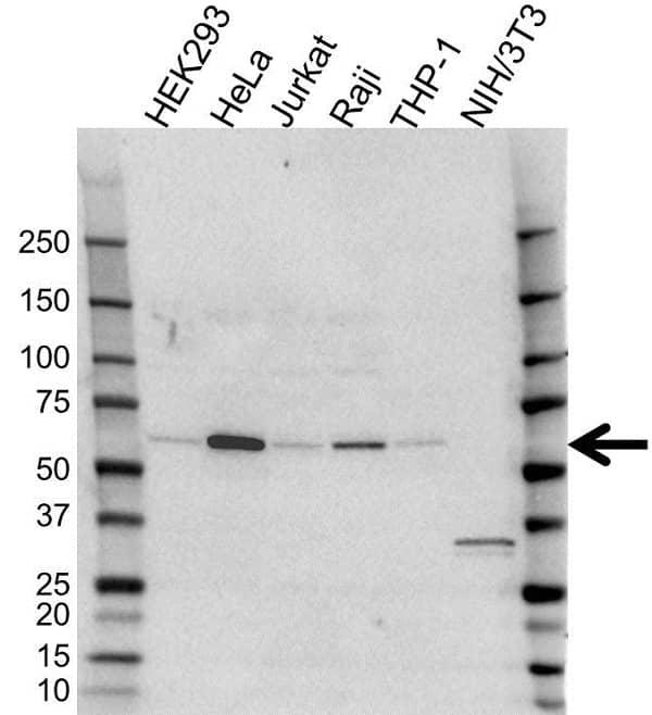 Anti SQSTM1 Antibody (PrecisionAb Polyclonal Antibody) gallery image 1