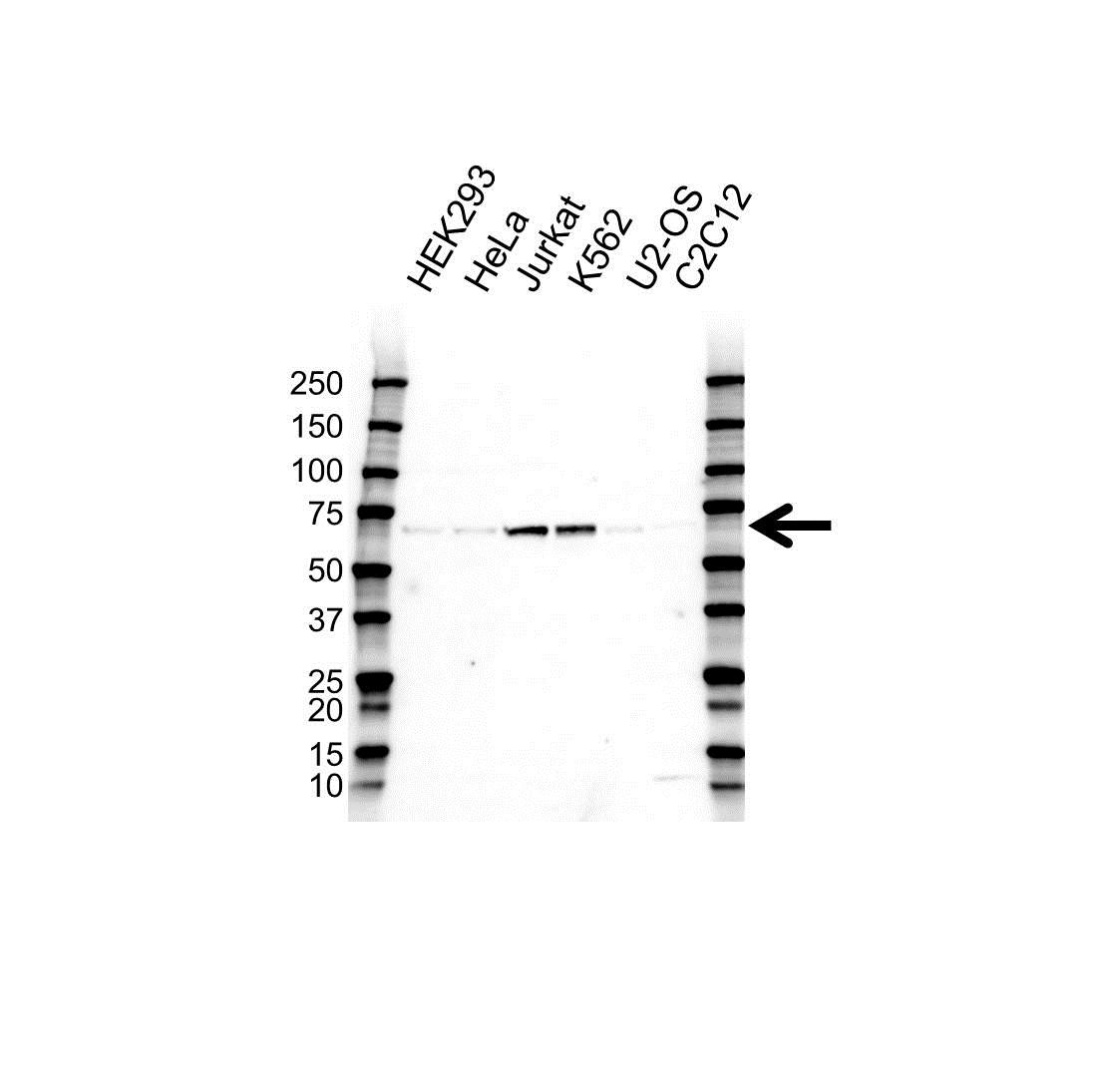 Anti SRF Antibody (PrecisionAb Polyclonal Antibody) gallery image 1