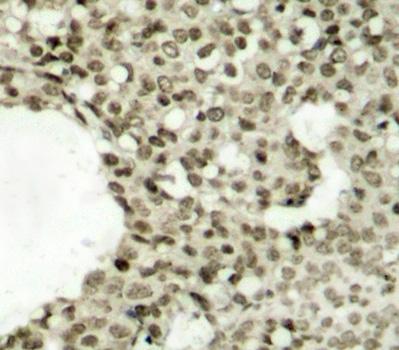 Anti STAT1 (pSer727) Antibody thumbnail image 2