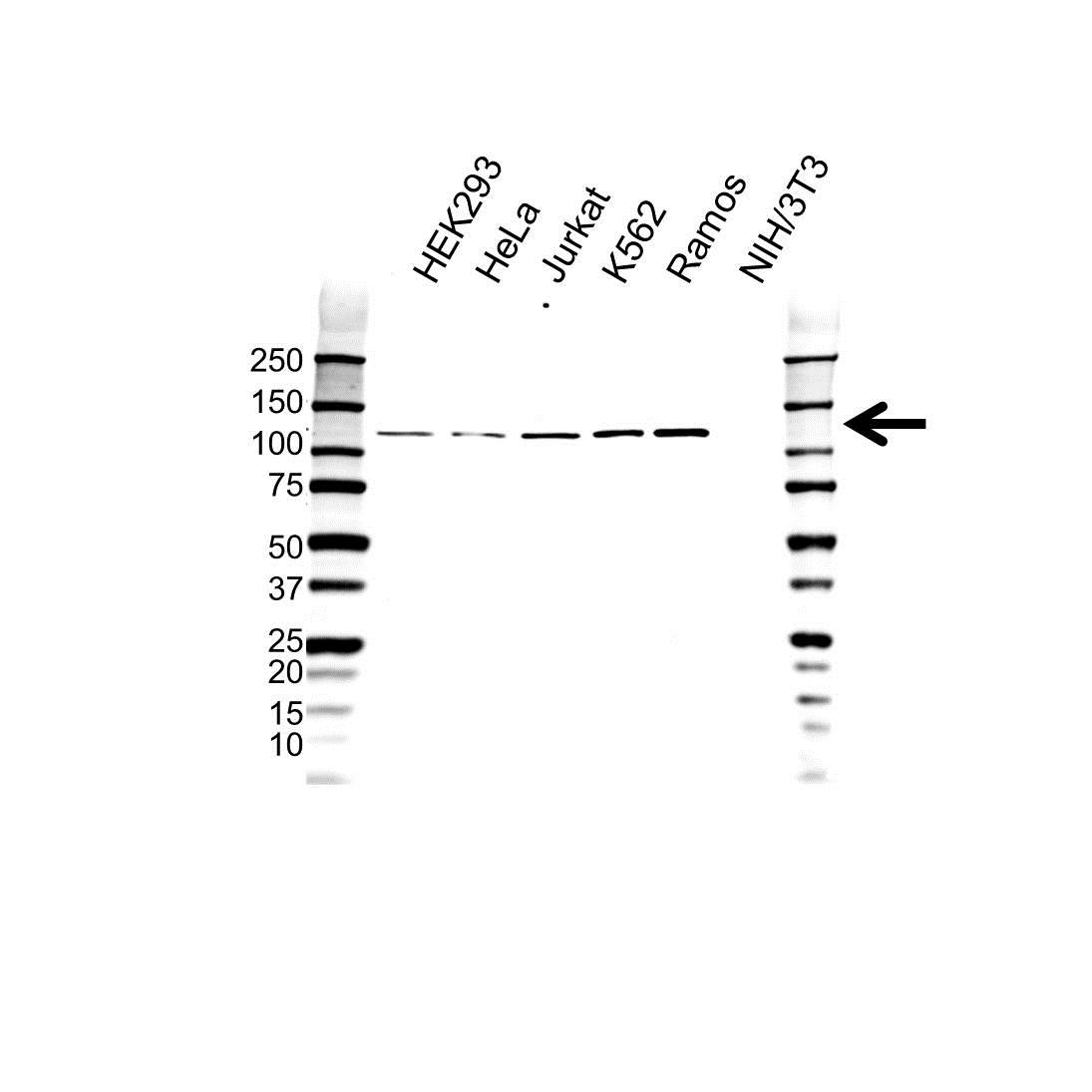 Anti STAT2 Antibody (PrecisionAb Polyclonal Antibody) gallery image 1