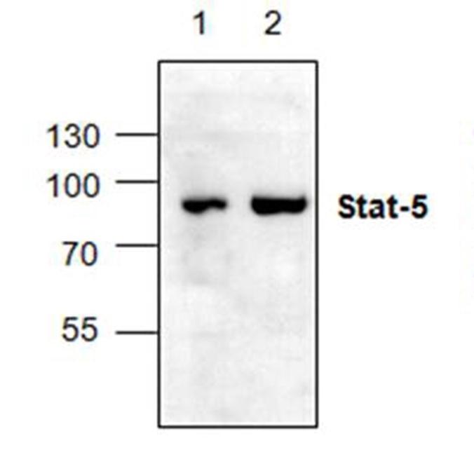 Anti STAT5B Antibody gallery image 1