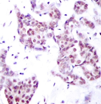 Immunohistochemical analysis of paraffin-embedded human breast carcinoma tissue using Rabbit anti STAT6 (pTyr641) antibody