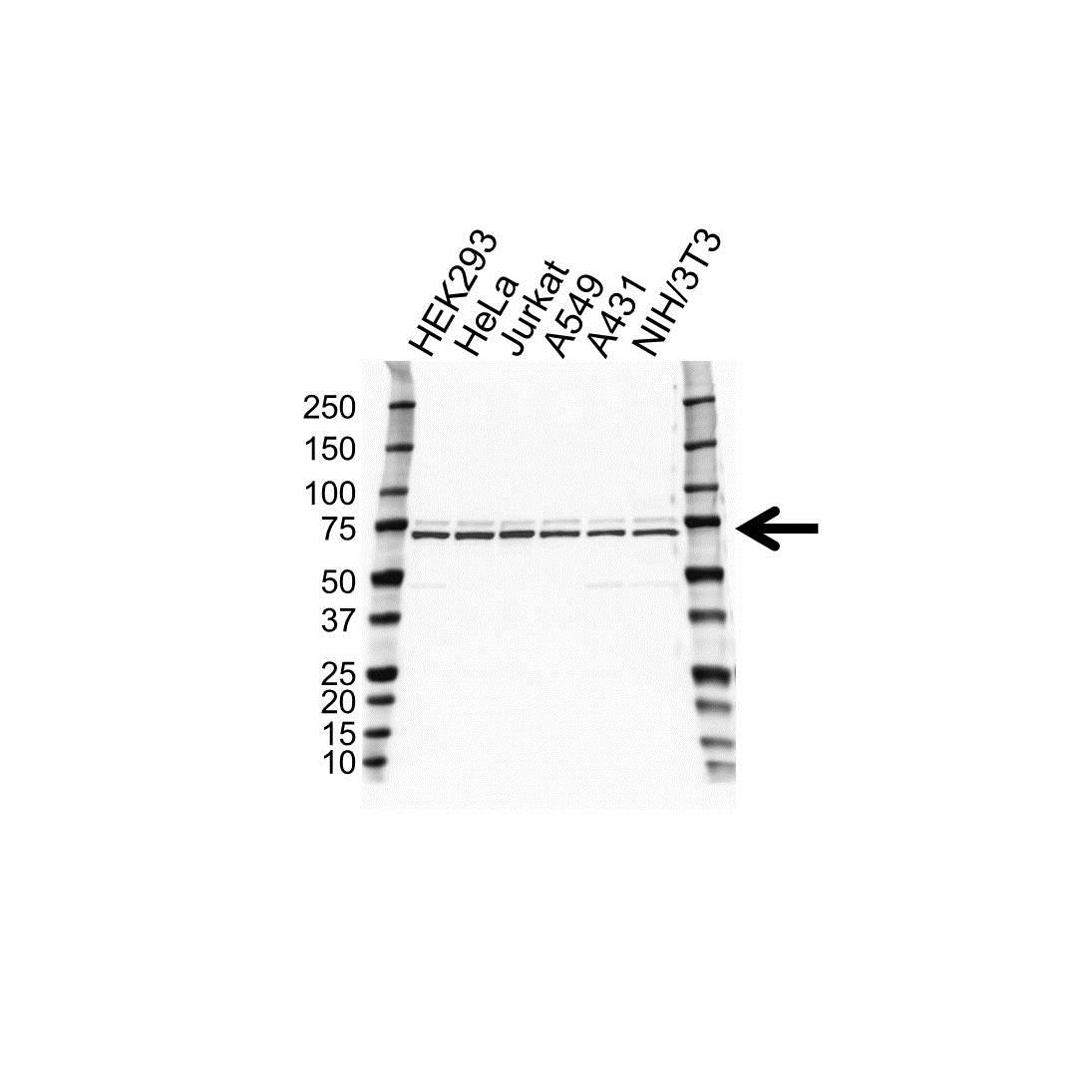 Anti STIP1 Antibody (PrecisionAb™ Polyclonal Antibody) gallery image 1