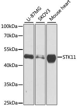 Anti STK11 Antibody gallery image 1
