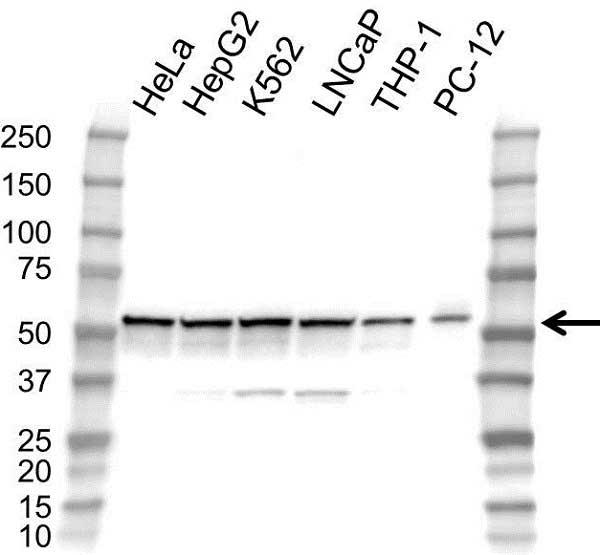 Anti STK24 Antibody (PrecisionAb Polyclonal Antibody) gallery image 1