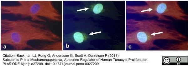 Anti Human Substance P Antibody thumbnail image 3